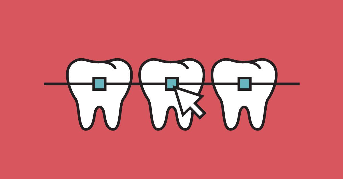 Diseño web para dentistas + ejemplos para triunfar con tu clínica dental